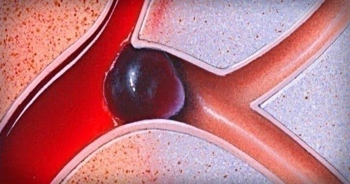 10 продуктов, которые разжижают кровь: профилактика инфаркта и инсульта