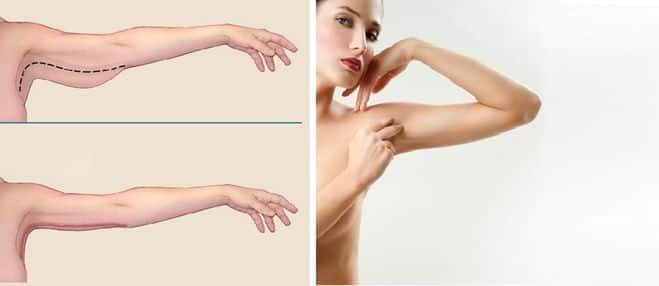 Как подтянуть обвисшие руки и получить красивую форму без пластики