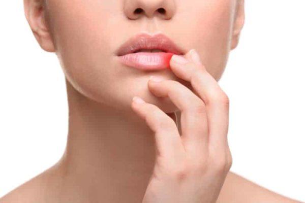 Герпес на губе: как лечить в домашних условиях