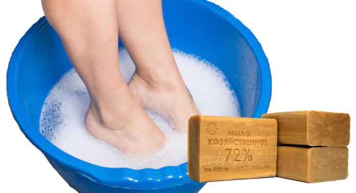 Хозяйственное мыло для лечения ног