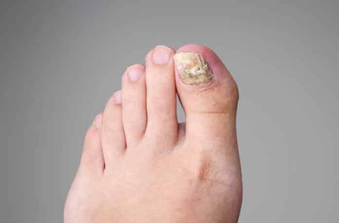 избавиться от грибка ногтей на ногах