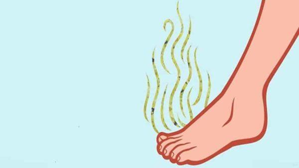 Запах ног: как избавиться от него самостоятельно