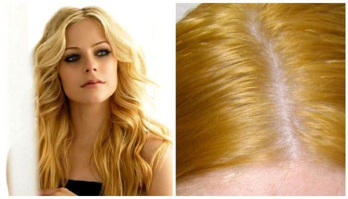 Желтые волосы после окрашивания