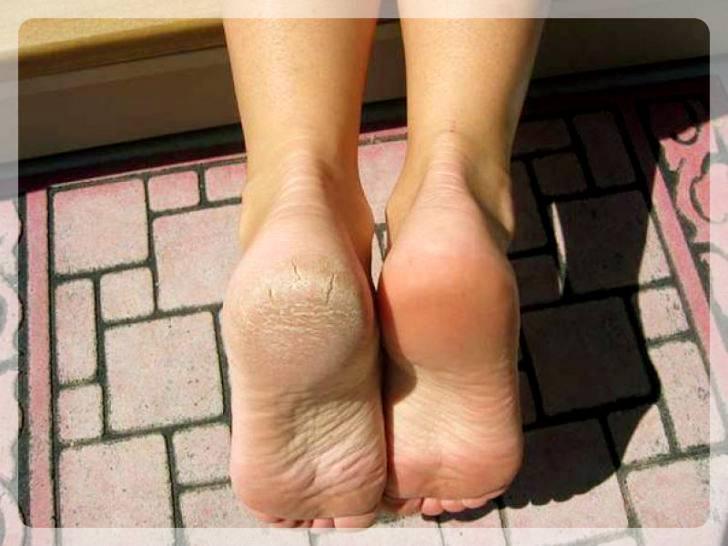 Ступни ног после сеанса пилинга