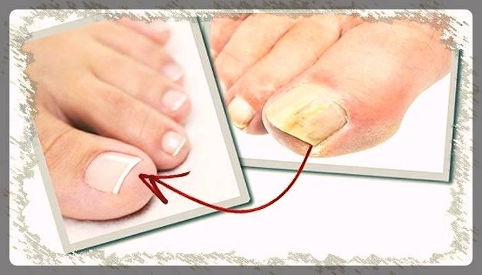 Больные и здоровые ногти